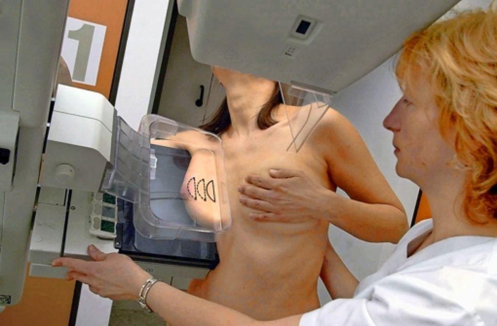 Brustkrebs Die Risiken Der Mammografie Wissen Stuttgarter Zeitung