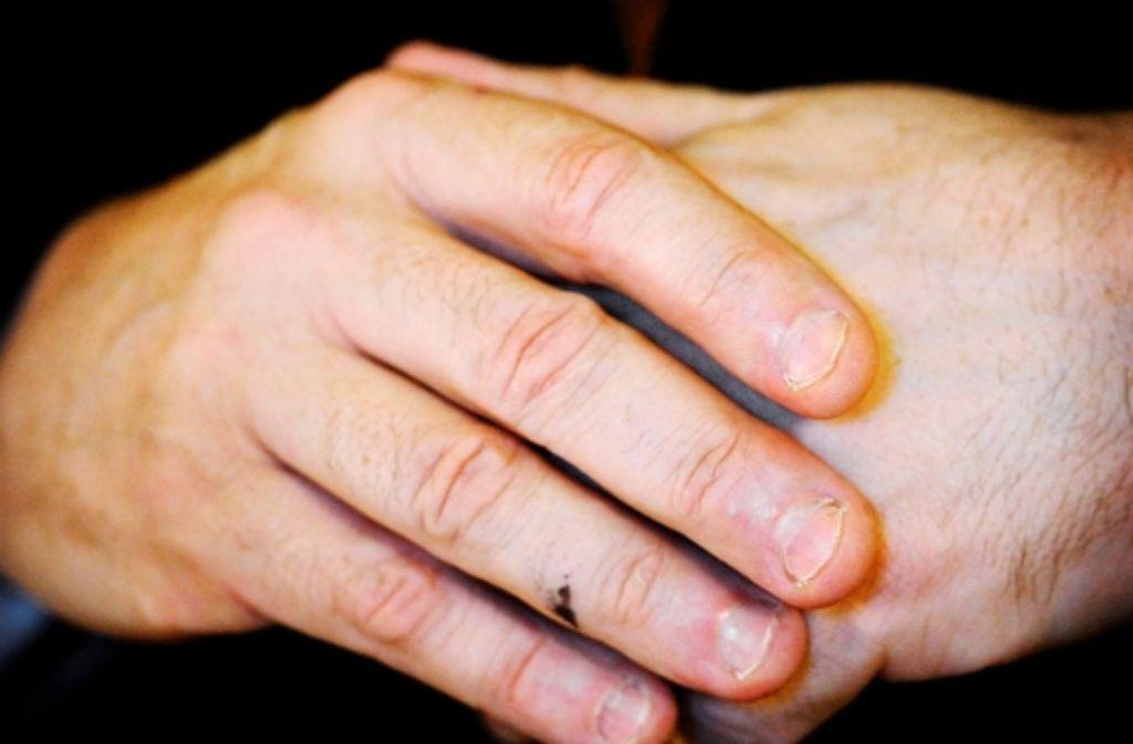 kinderwissen woher kommen die wei en flecken auf den fingern geln wissen stuttgarter zeitung. Black Bedroom Furniture Sets. Home Design Ideas
