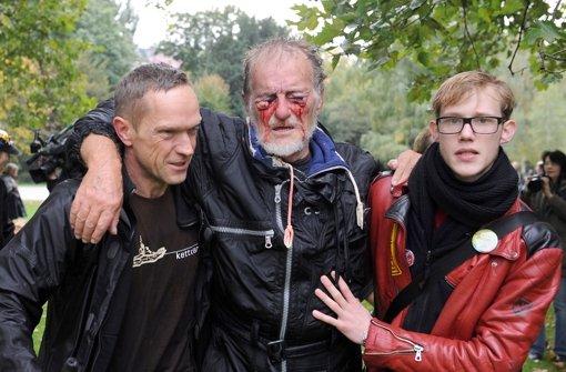Dietrich Wagner ist seit dem 30. September 2010 praktisch blind. Foto: dpa