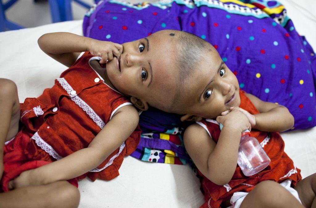 Siamesische Zwillinge Einer Stirbt